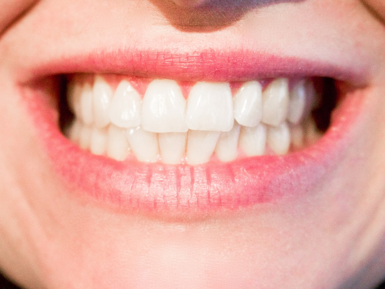 Šta sve oštećuje zubnu gleđ?